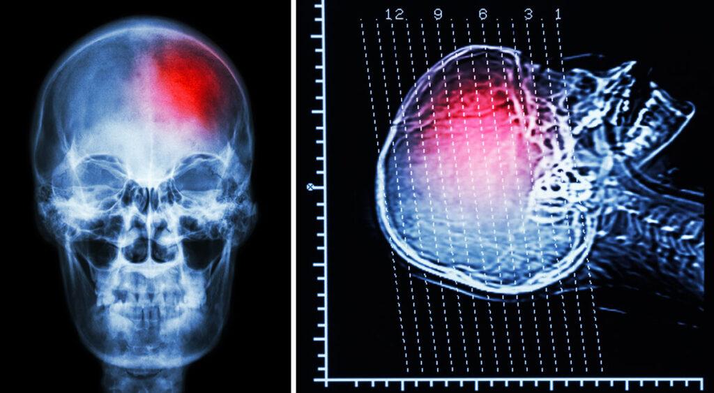 Brain-Injury-correct-NEW
